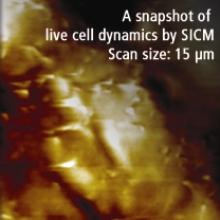 200808-park-systems-xe-afm-snapshot-live-cell-dynamics-SICM
